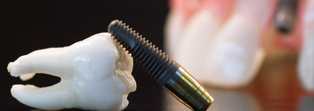 An-implant-may-be-the-difference-between-one-lost-tooth-and-a-whole-lot-of-missing-teeth