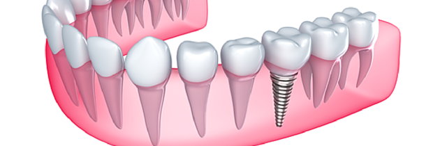 dental-implants-armidale-new-england-dental