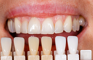 image_veneers-crowns