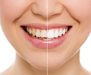 image_teeth-whitening